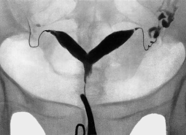 Что такое МСГ маточных труб в гинекологии, последствия