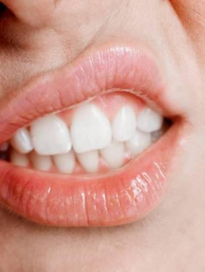 отбеливание зубов brilliant