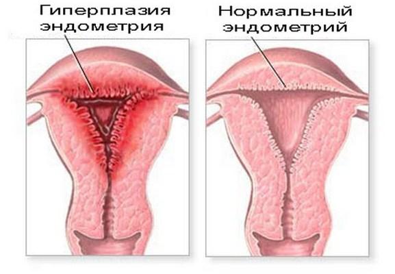 Гиперлазия эндометрия матки: симптомы, причины, лечение