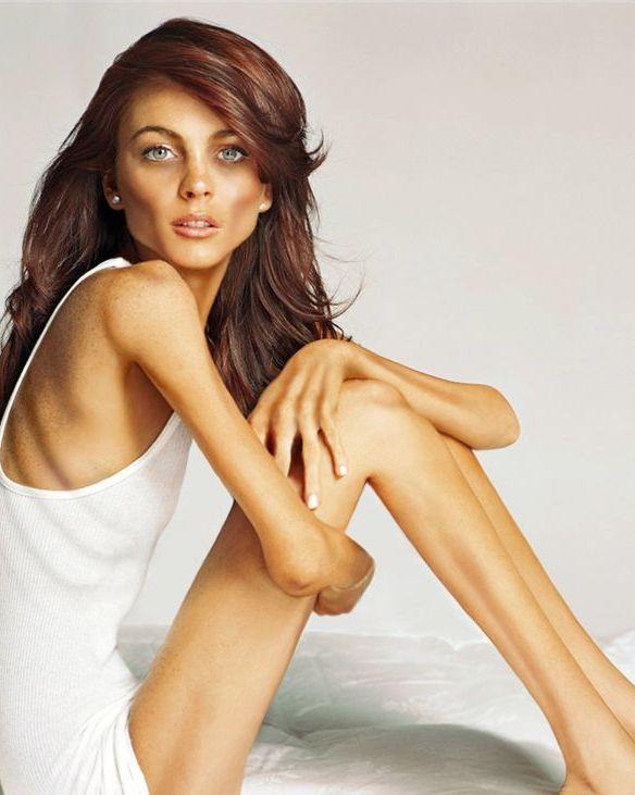 Худая анорексичка фото, частная галерея рус голых жен