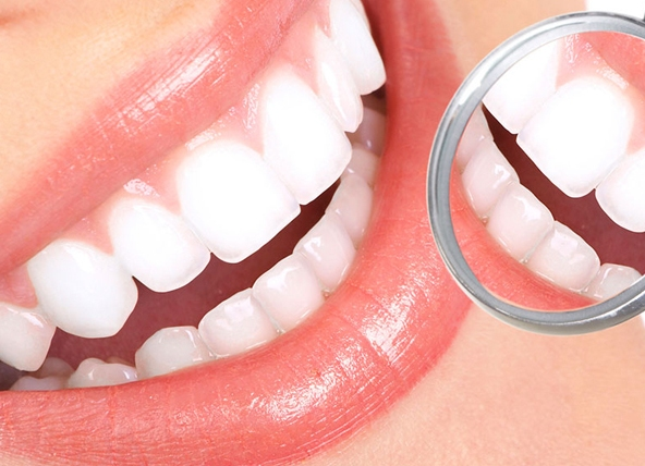 Профессиональная чистка зубов ультразвуком в Москве