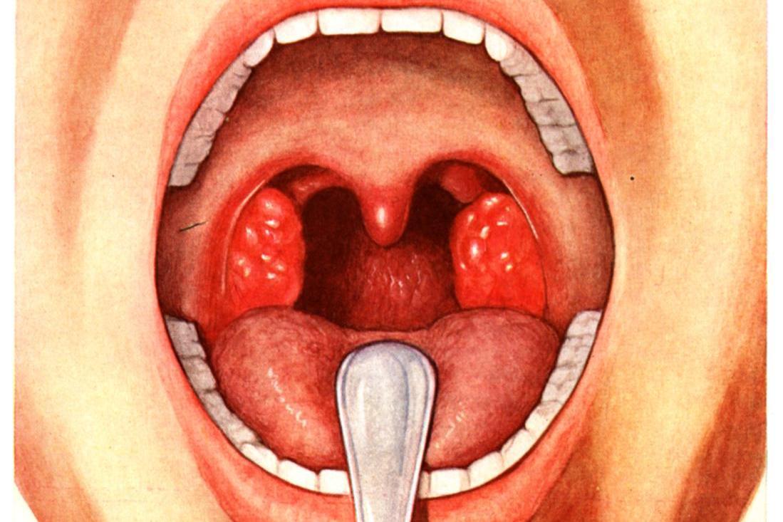 Воспаленные гланды или что такое тонзиллит