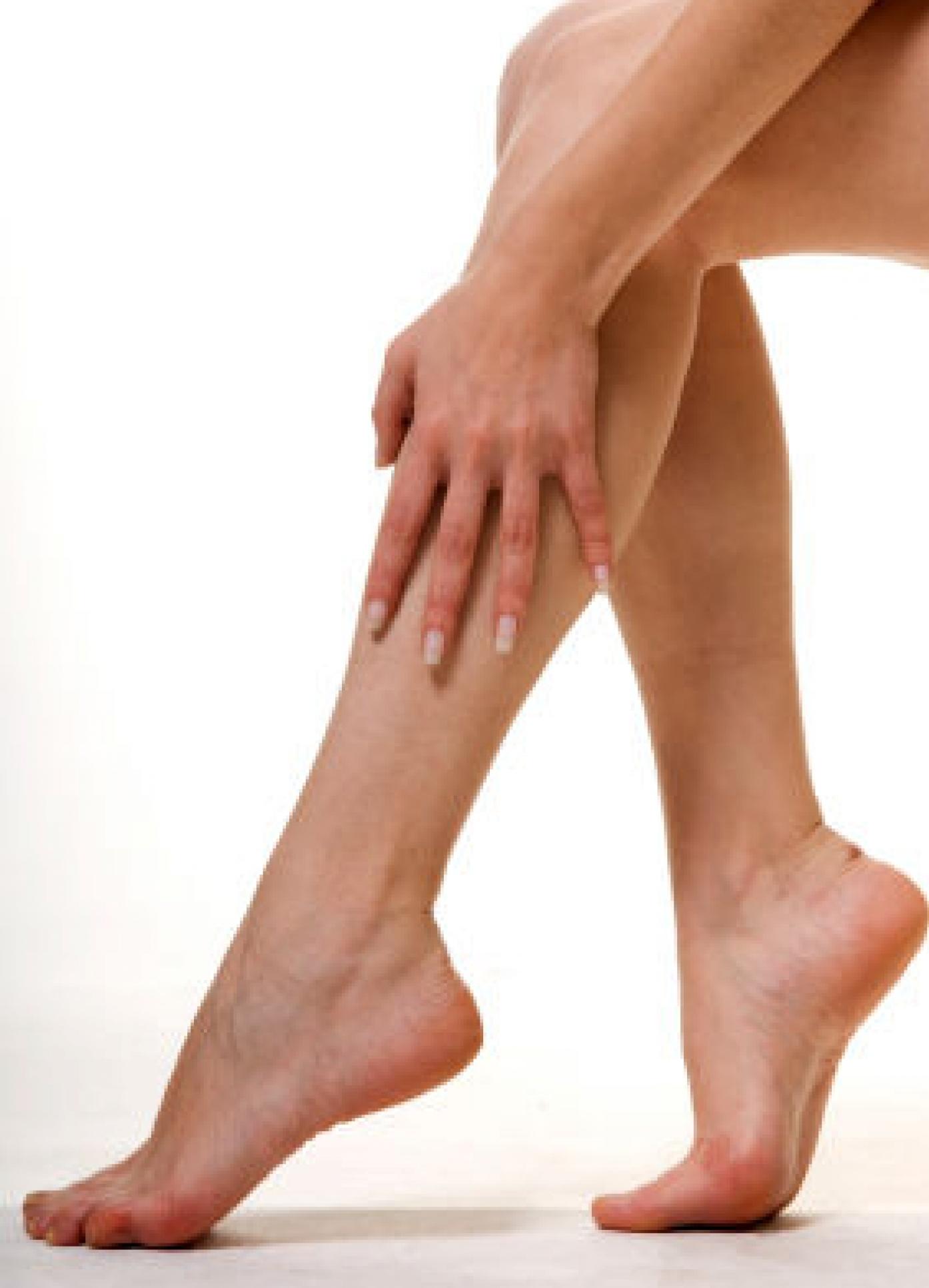 Варикоз ног и его лечение