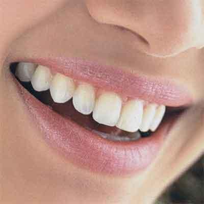 Временная пломба, виды. Как и зачем стоматологи ставят временную пломбу.