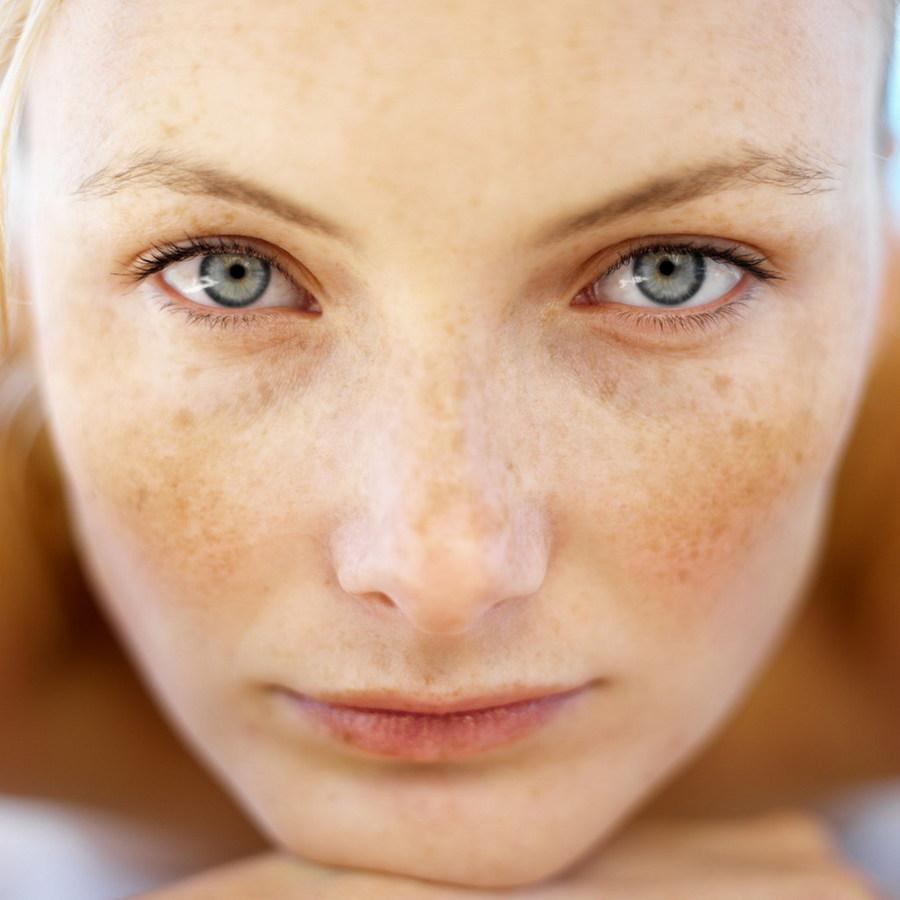 Как убрать коричневые пятна на лице. Пятна на лице коричневого цвета