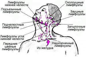 Схемы лимфоузлов человека