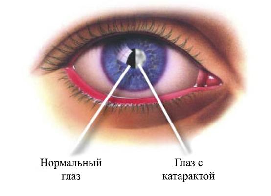 Симптомы катаракты на ранних стадиях